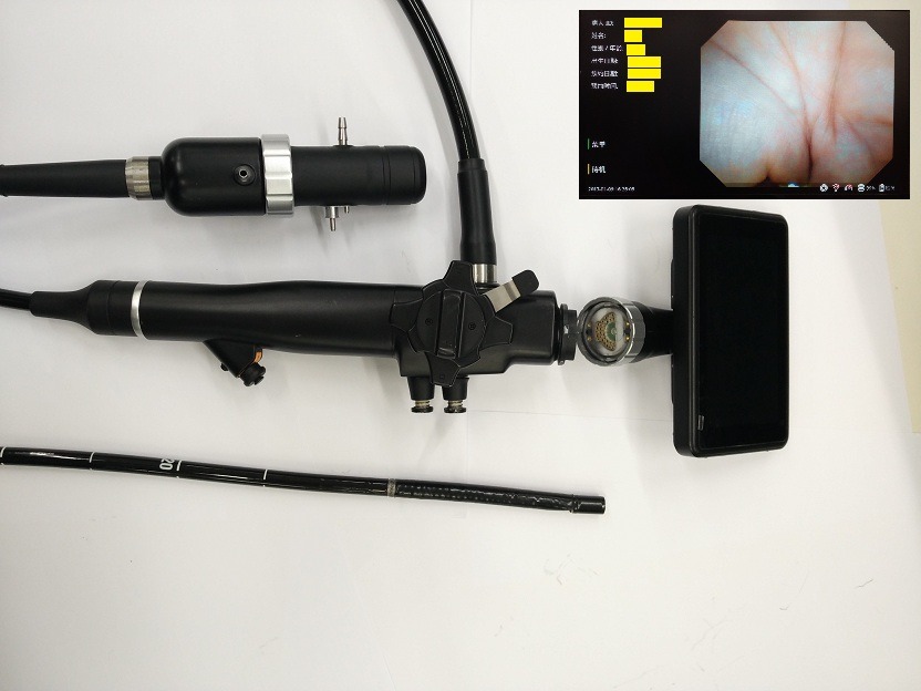 Handheld Video Endoscope/ Laryngoscope